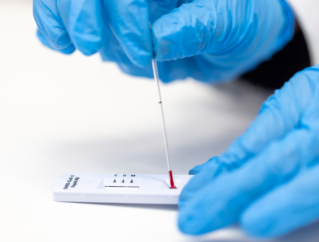 Antistoffentest
